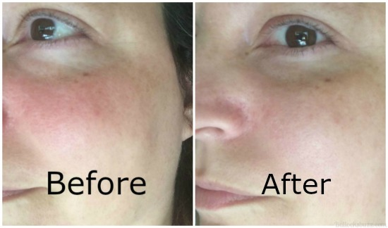 prosacea before and after pictures