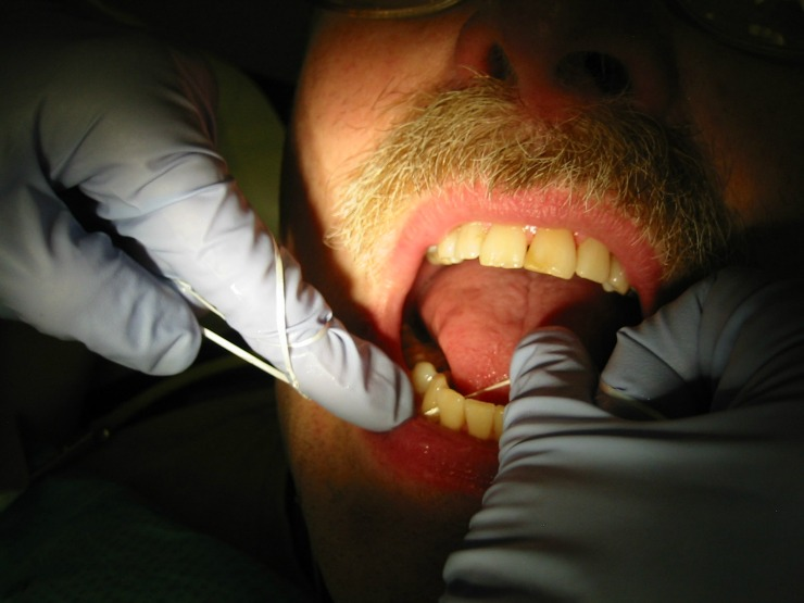 5 common dental problems main image