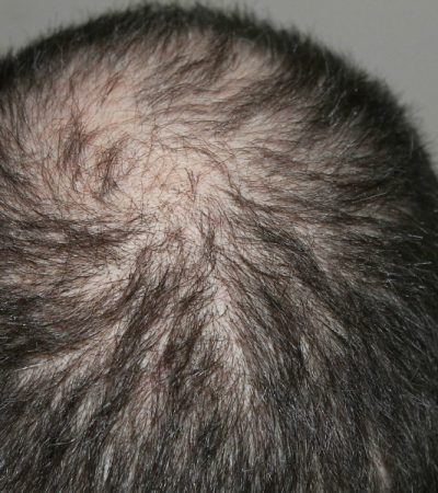 Hair Supplements: What is the Winning Formula to Help Hair Loss?