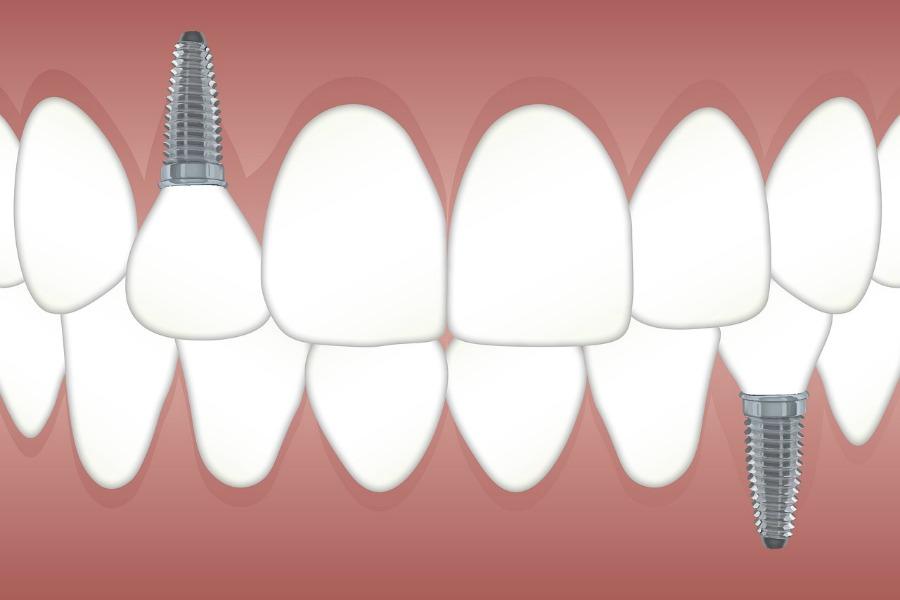 why get dental implants