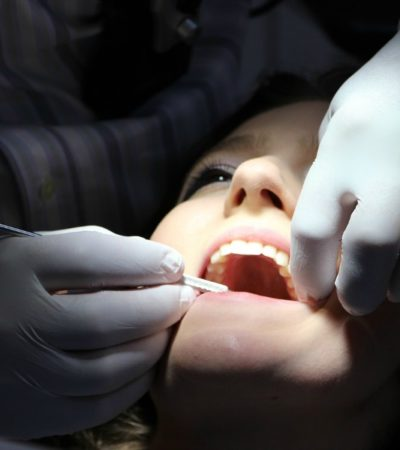 dentist working on a child's teeth