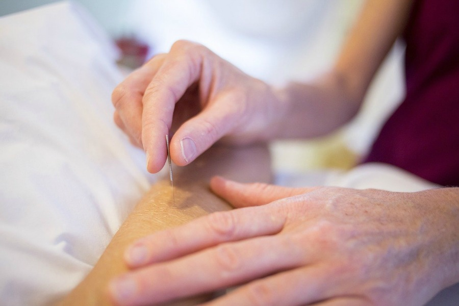 acupuncture as a way to ease pain