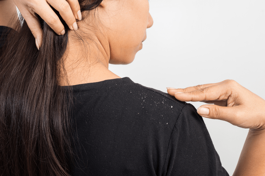 dandruff on shoulder of a dark shirt