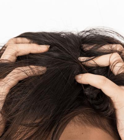lice vs. dandruff a complete guide