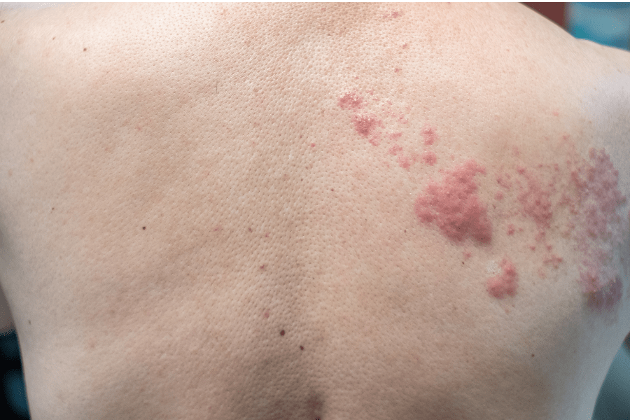 CBD can help with pain from shingles like these on this man's back