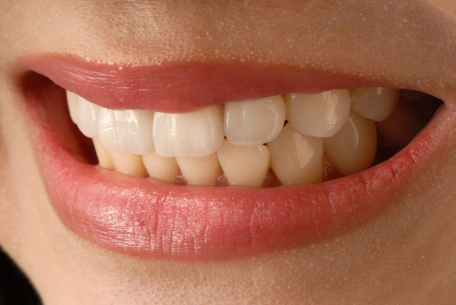 you can have a healthy smile like this one by  properly caring for your teeth